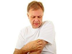 ¿Cuáles son los síntomas y tratamiento de la psoriasis?