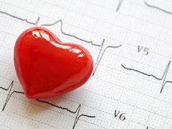 ¿Qué relación existe entre las enfermedades cardiacas y las enfermedades cerebrovasculares?