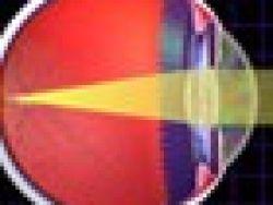 Cómo se produce la miopía e hipermetriopía