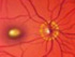 ¿Por qué se produce la degeneración macular?