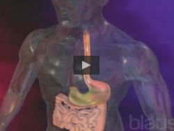 ¿Por qué se producen las úlceras gástricas?