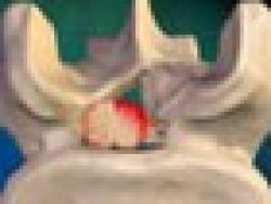 ¿Qué es la estenosis de la columna?