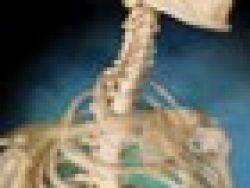 Complicaciones de la cirugía espinal