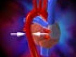 ¿Qué es la enfermedad cardíaca congénita?