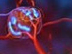 ¿Qué es el trtamiento TheraSphere?