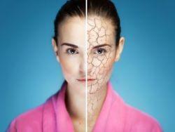 4 trucos de la abuela para hidratar la piel seca