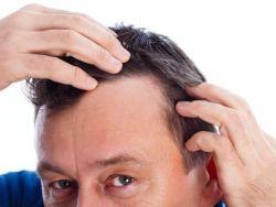 El truco de la abuela contra la caída del pelo