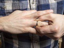 El truco de la abuela para sacar un anillo atascado en el dedo