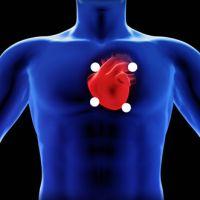 Auscultación cardiaca (zonas)
