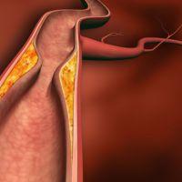 Coronaria obstruida