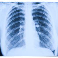 Radiología de los pulmones