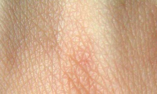 enfermedades en la piel. enfermedades de la piel.